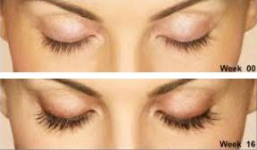 latisse-eyelashes